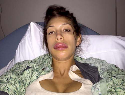 farrah-abraham-duck-lips-surgery