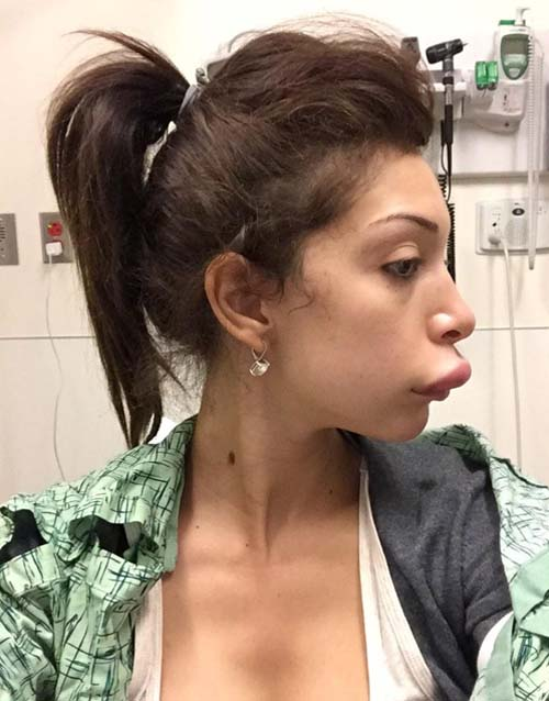 farrah-abraham-lips-surgery-fail