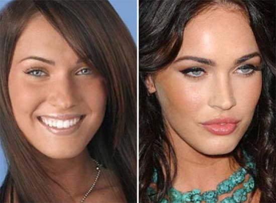 Celebrities Surgery Transformation